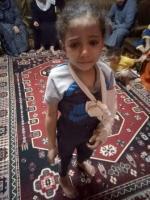 الطفلة سما, ضحية التعذيب,
