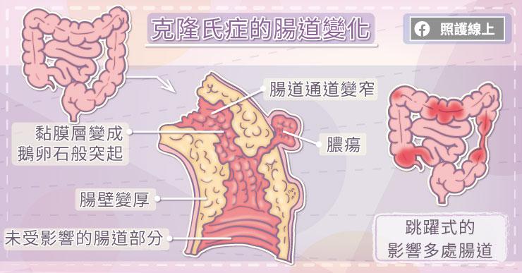 克隆氏症的腸道變化