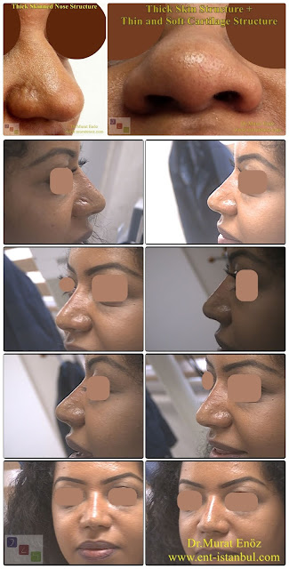 African American rhinoplasty,Thick skin rhinoplasty,Ethnic expert nose job surgeon,Black nose job,Ethnic Rhinoplasty Istanbul,Rhinoplasty for African American Nose,