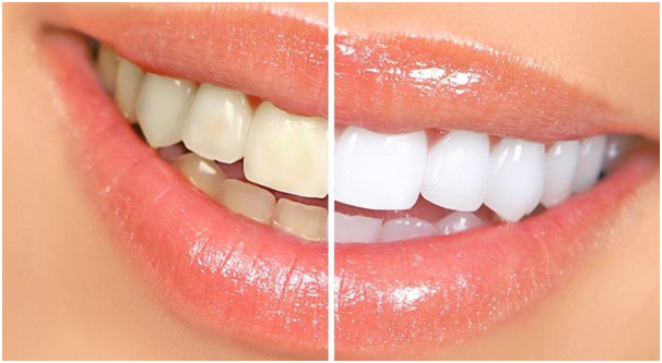 What Are The Reasons And Treatment For Tooth Discoloration?