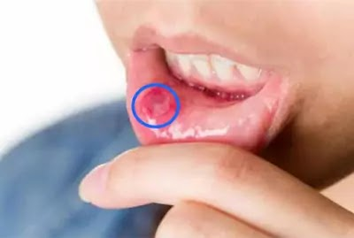 How can I treat mouth ulcers?
