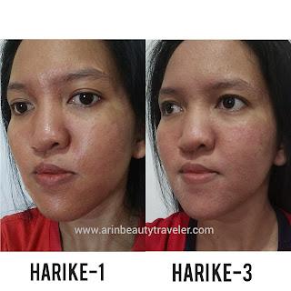 acne story