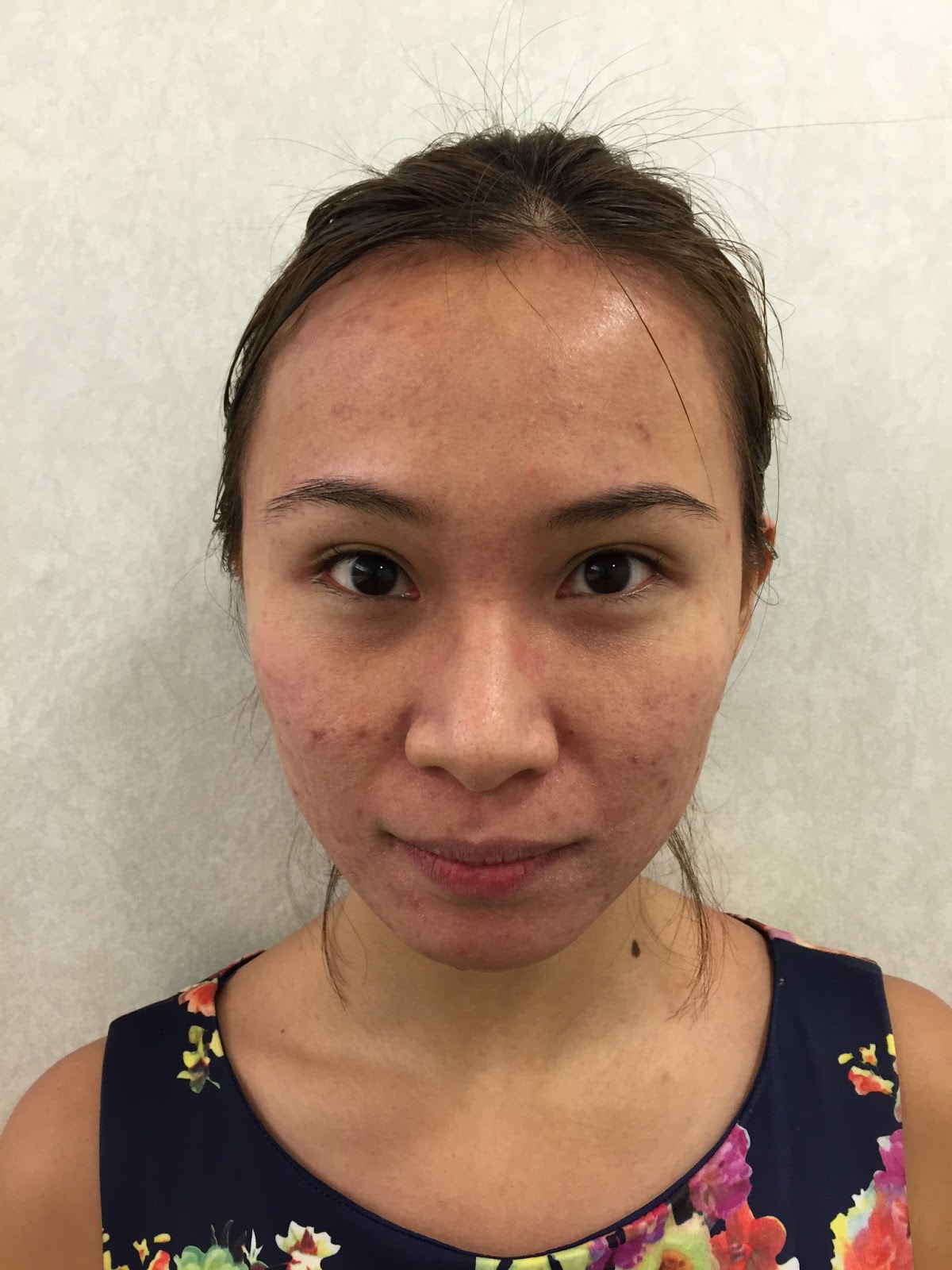 Adult Acne Permanent Cure