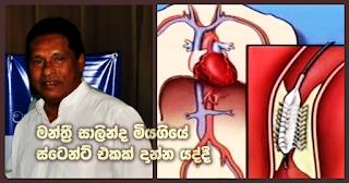 Parliamentarian Salinda died during stent process