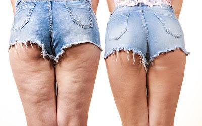 Comment utiliser le noyau d'avocat pour éliminer la cellulite