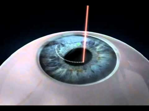 Small Incision Lenticule Extraction