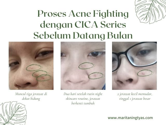 acne fighting dengan cica series npure