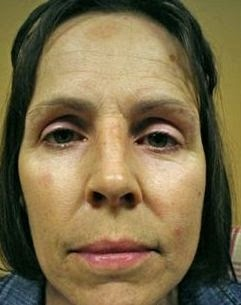 Natural Cure Frown Lines