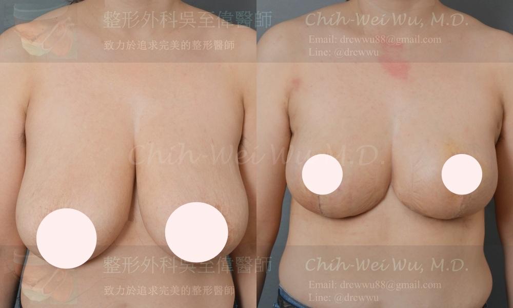 產後合併減重後嚴重乳房下垂,接受倒T切口提乳手術,提乳手術權威吳至偉醫師