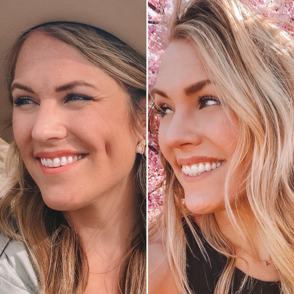 OKC based blogger Amanda's OK shares a before and after of clear aligner treatment with Lewis Orthodontics