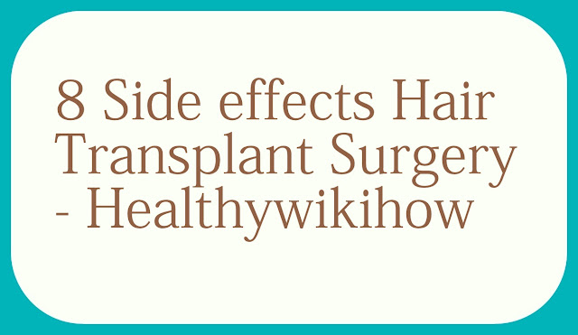 About 8 Side effects disadvantages Hair Transplant Surgery – Healthywikihow