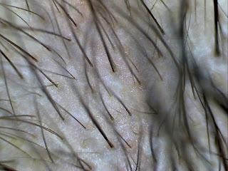 zabieg infuzja tlenowa na włosy po warszawa