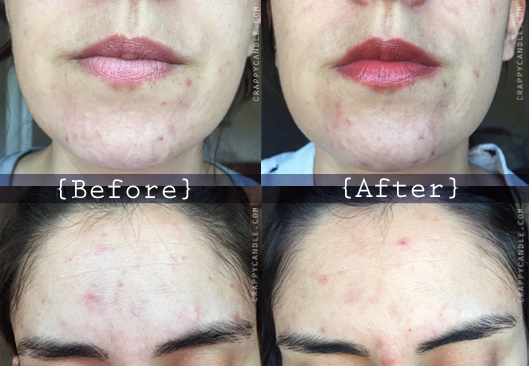 GoW Mandelic Acid 10% Serum (No Alcohol/No Seaweed) Before & After:: The Acne Experiment
