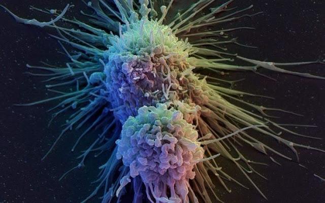 Θεραπεία Για Τον Καρκίνο