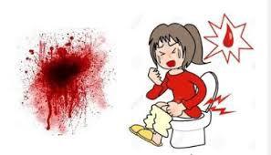 obat ampuh wasir yang mengeluarkan darah