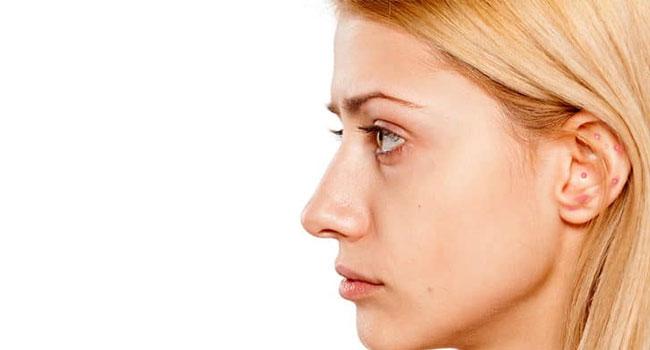 Cara Mengatasi Jerawat di Telinga Secara Alami