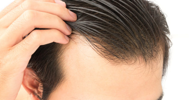 What are the signs of hereditary hair loss?