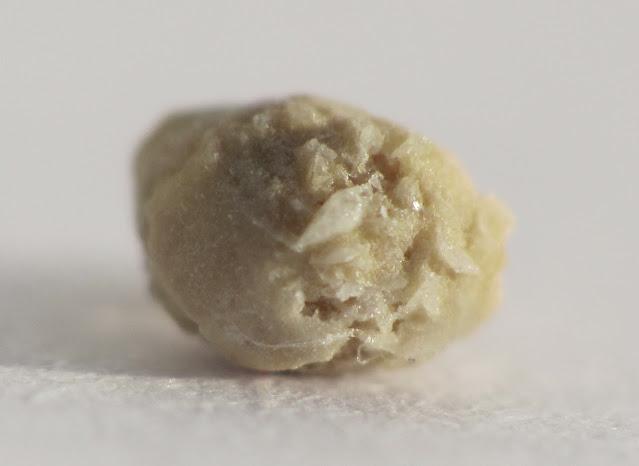 Kidney-Stone-Pain