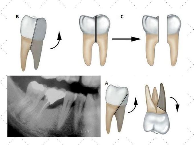 PDF: Hemisección y Amputación Radicular de dientes multirradiculares - Dr. Gay Escoda