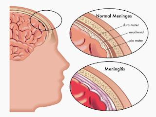 Apa itu Meningitis