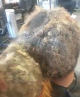 LADIES, this is why you should not wear weaves for more than two months. YUCK!