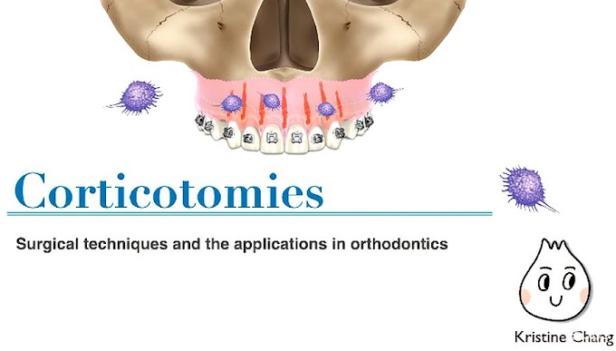 CORTICOTOMIES: Surgical techniques and the applications in orthodontics - Chris Chang