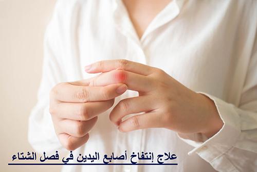 علاج إنتفاخ أصابع اليدين في فصل الشتاء