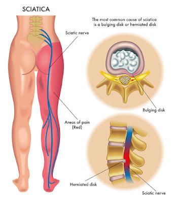 obat hnp, obat hernia nucleus pulposus,