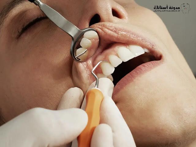 علاج تسوس الأسنان في المنزل.