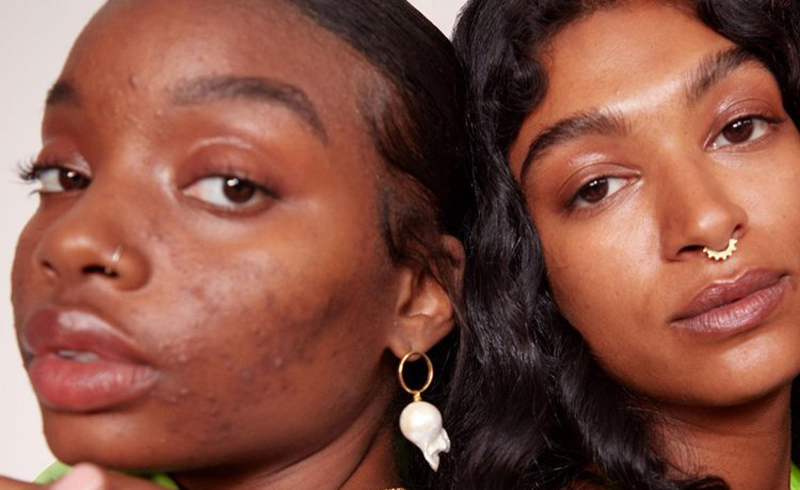 10 Things No One Ever Tells You About: Dark Spots