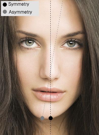 Asymmetry Facial 75