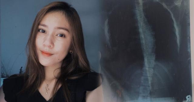 Netizen, Ibinahagi ang hirap na naranasan niya sa pagkakaroon ng Scoliosis