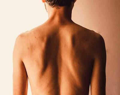 ما سبب الشعور بقرص في الجسم