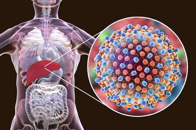 Aplikasi Praktis Terapi VCO, Madu, dan Nutrisi untuk Hepatitis