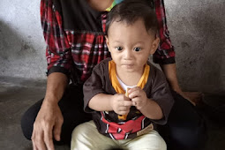 Terlahir Dari Keluarga Kurang Mampu,Rahman Danur prasteyo Menderita Kurang Gizi.
