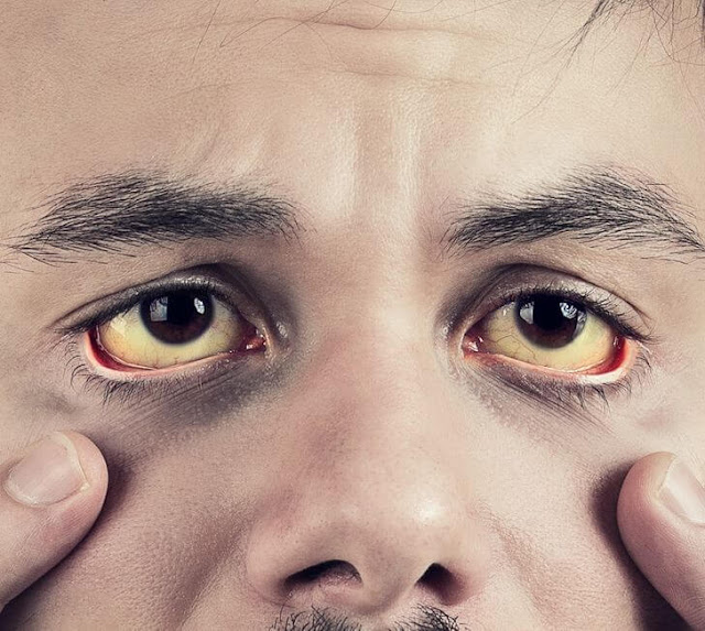 اصفرار الجلد وبياض العينين