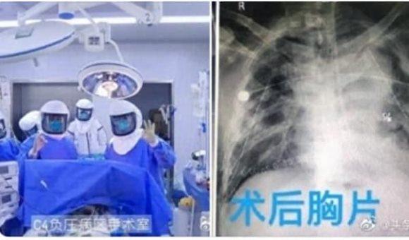TQ: Thực hiện cấy ghép phổi đầu tiên cho bệnh nhân COVID-19