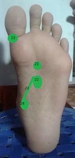 Mengatasi pembuluh darah sempit dengan pijat refleksi