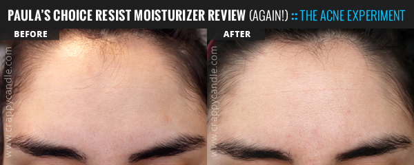 Paula's Choice RESIST Anti-Aging Clear Skin Hydrator (New Formula) Before & After :: The Acne Experiment