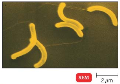 Mikrob Dalam Rumah Bisa Menebak Jenis Kelamin dan Hewan Peliharaan Anda Lho!