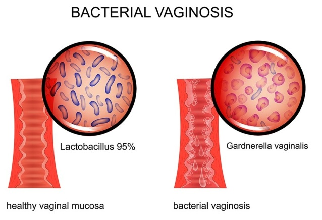 Bacterial Vaginosis Test