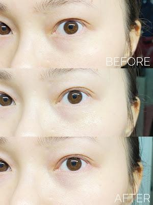 黑眼圈 減紋 DERMALOGICA