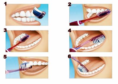 Cara Sikat Gigi yang Benar