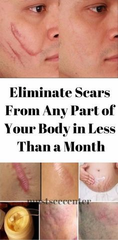 ELIMINATE SCARS FROM ANY PART OF YOUR BODY IN LESS THAN A MONTH