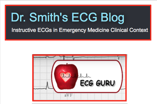 My ECG Comments elsewhere ...
