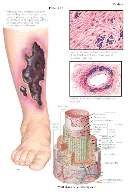 CALCIPHYLAXIS