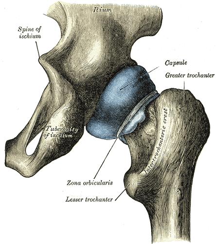 Arthrose de la hanche,traitement,maladie