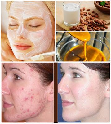Remède de grand mère pour effacer les taches d'acné