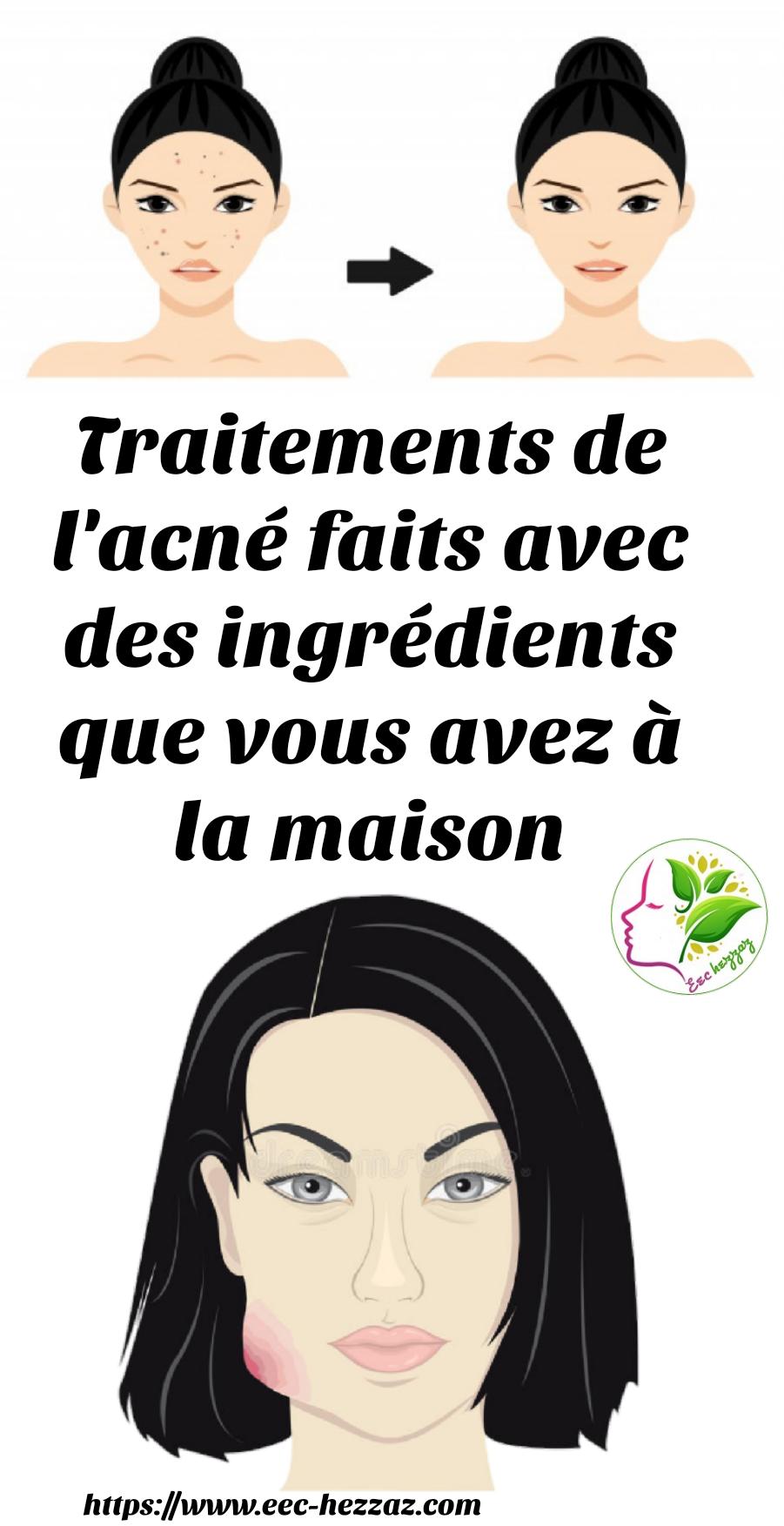Traitements de l'acné faits avec des ingrédients que vous avez à la maison