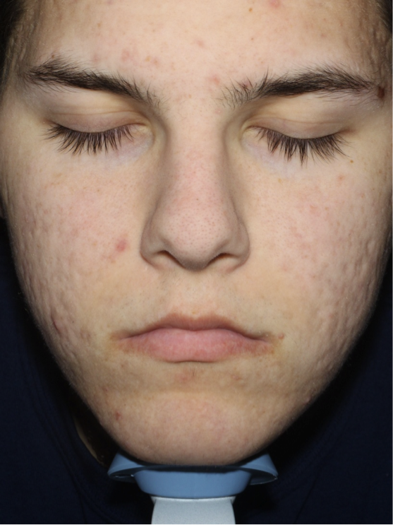 Baby Quasar The Truth About Acne